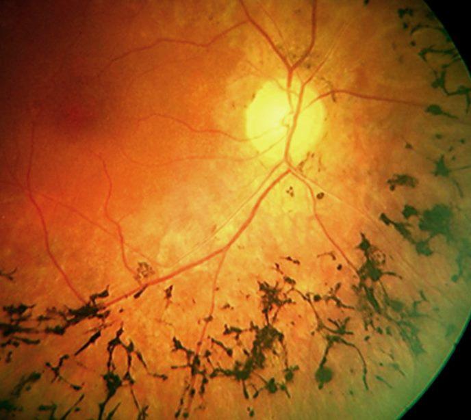 Ученые нашли способ вернуть зрение при пигментном ретините