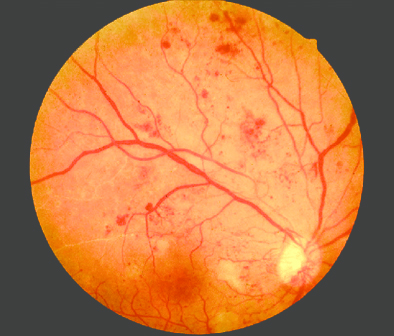 Диабетическая ретинопатия. Что такое диабетическая ретинопатия?