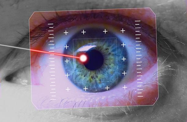 Рекомендации по лазерной хирургии глаз