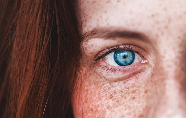 Почему краснеют глаза и как с этим бороться